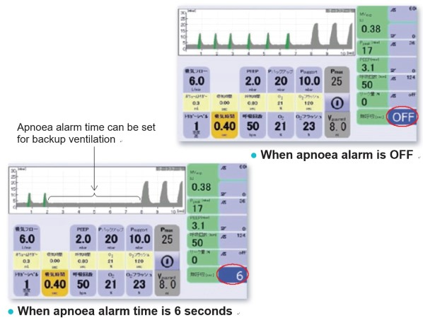 Fig. 5  Screen image of FABIAN HFO (apnoea alarm ON/OFF)