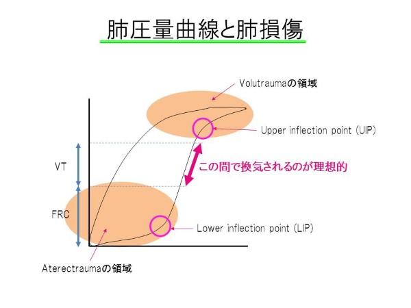 圧量曲線 (Custom)