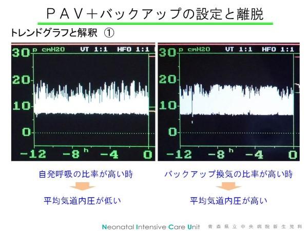 PAVTrend1 (Custom)