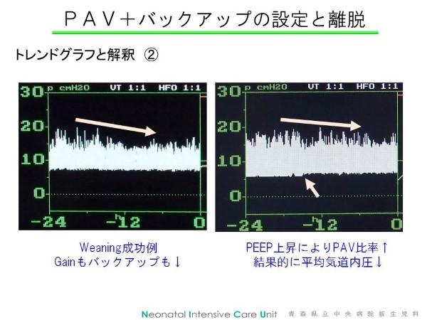 PAVTrend2 (Custom)