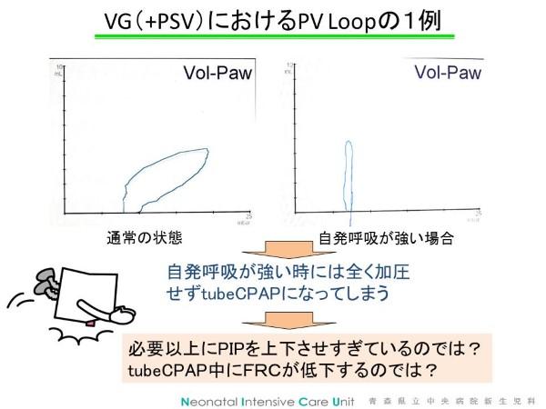 VG3 (Custom)